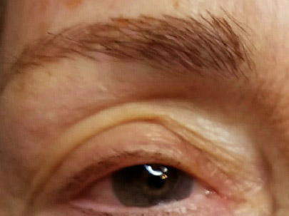 Permanent Makeup Eyebrows for Older Women
