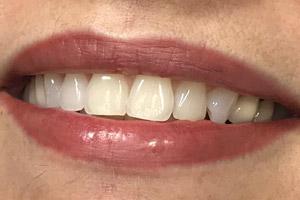 Permanent Lipstick Dallas 2020